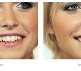 Come eliminare le imperfezioni con Photoshop: i Pennelli correttivi